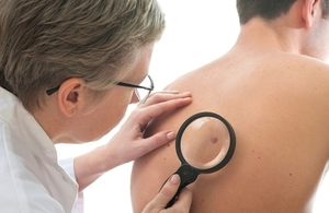 Over 500 UK patients gain early access to new melanoma treatment
